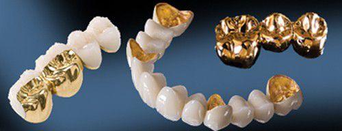 Cách bọc răng sứ cho răng cửa một cách hiệu quả nhất  2