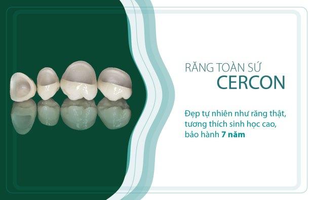 Giải đáp vấn đề nên chọn loại răng nào để bọc răng sứ