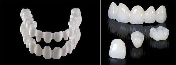 Cách bọc răng sứ cho răng cửa một cách hiệu quả nhất  3