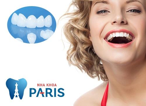 Giải đáp những điều hay thắc mắc về trồng răng thẩm mỹ 3