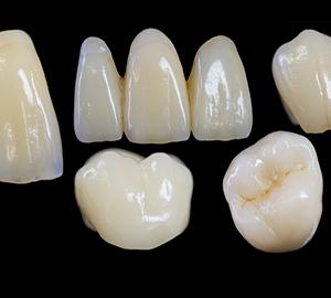 Những lưu ý KHÔNG THỂ BỎ QUA trước khi bọc mão răng sứ 3