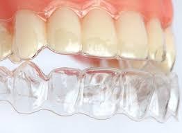 Cách làm máng răng hiệu quả giúp tẩy trắng bất ngờ 1