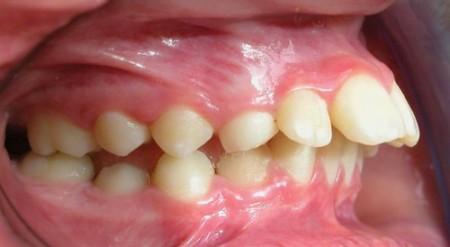 [Giải đáp] Loại bỏ hàm răng hô nhanh chóng, hiệu quả 100%