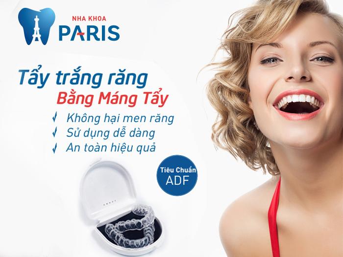 Cách làm máng răng hiệu quả giúp tẩy trắng bất ngờ 3