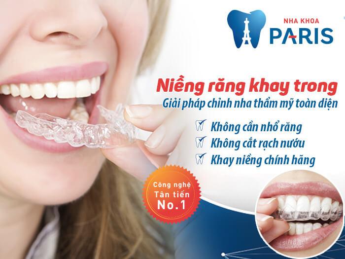 Tự tin cười xinh với niềng răng không mắc cài Invisalign 1