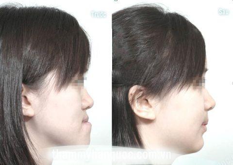 Khi nào cần niềng răng để HIỆU QUẢ TỐT NHẤT? 2
