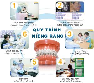 Quy trình niềng răng mắc cài chuẩn ADF – Pháp