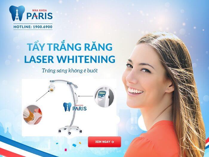 Bật mí phương pháp tẩy trắng răng hiệu quả nhất 2017 3