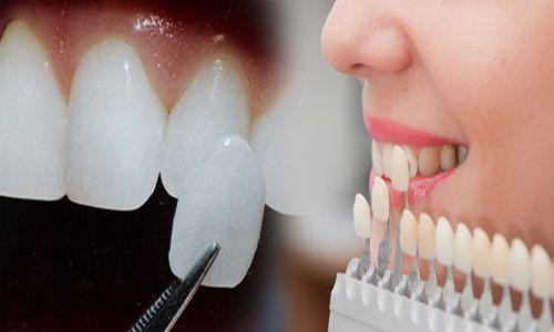 Liệu bọc răng sứ có hại không?