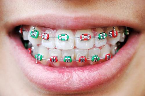 Có mấy kiểu niềng răng mắc cài kim loại và loại nào TỐT NHẤT?  2