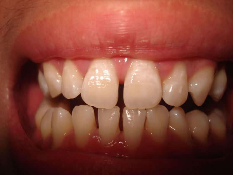 Có nên chỉnh răng thưa bằng cách hàn trám răng không?