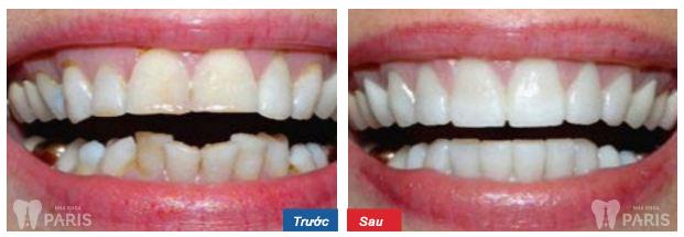 Niềng răng tháo lắp có thực sự mang lại hiệu quả cao?  3