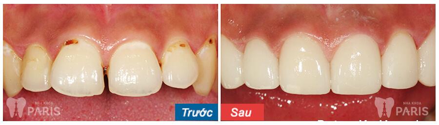 Những lưu ý KHÔNG THỂ BỎ QUA trước khi bọc mão răng sứ 4