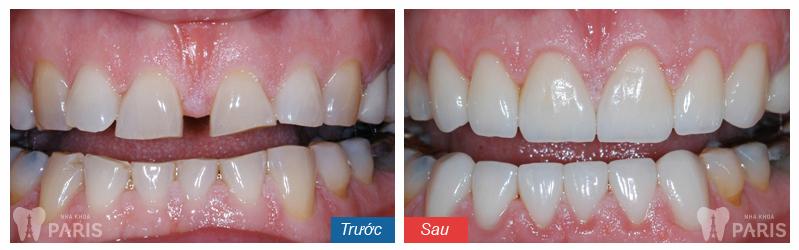 Khi nào cần niềng răng để HIỆU QUẢ TỐT NHẤT? 5