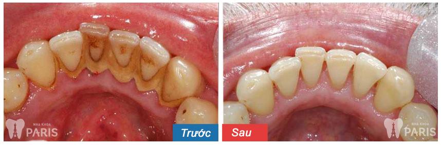 Cách chữa khỏi bệnh viêm chân răng dứt điểm hoàn toàn 5