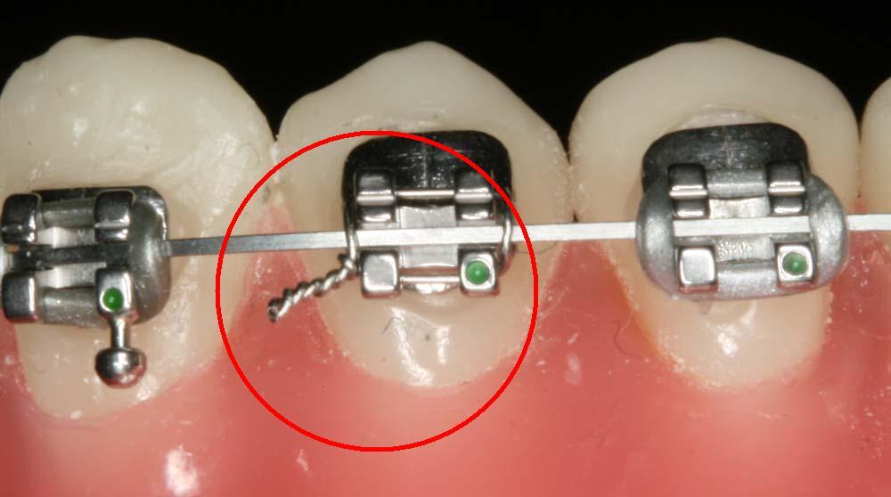 Có mấy kiểu niềng răng mắc cài kim loại và loại nào TỐT NHẤT?  3