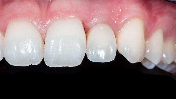 Thắc mắc có nên mài răng cho ĐỀU và có hại không 1