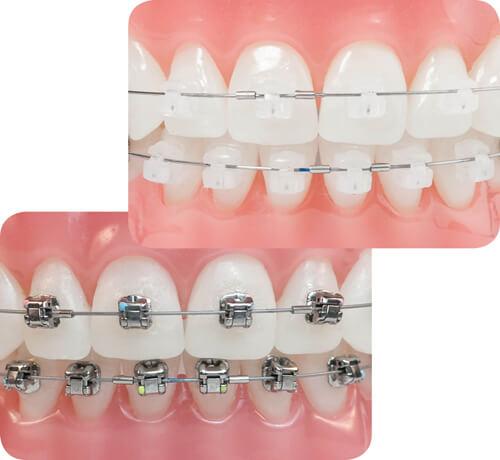 Niềng răng có đau không? Bác sĩ nha khoa giải đáp