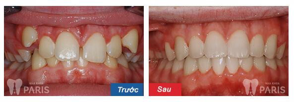 Hiệu quả nhất là nên niềng răng trong độ tuổi nào? 3
