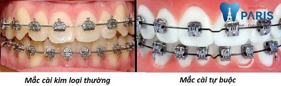 Có mấy kiểu niềng răng mắc cài kim loại và loại nào TỐT NHẤT?
