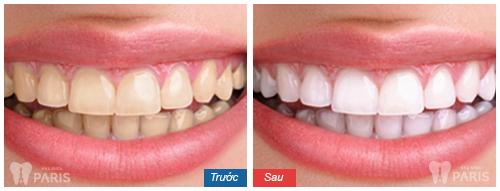 Giải đáp thắc mắc có nên tẩy trắng răng không 3