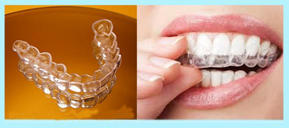 Niềng răng tháo lắp có thự5c sự mang lại hiệu quả cao?