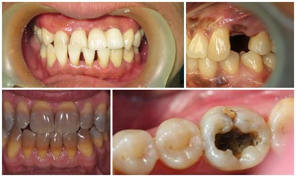 Những lưu ý KHÔNG THỂ BỎ QUA trước khi bọc mão răng sứ 2