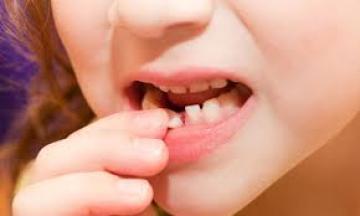 Nhổ răng sữa lung lay sớm có nguy hiểm không?