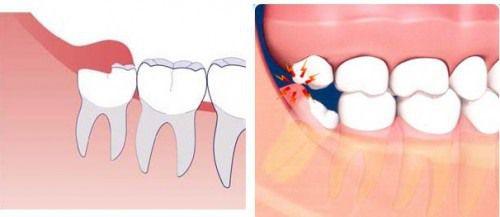 Đau răng khôn mấy ngày thì hết? Có cách giảm đau nhức không?
