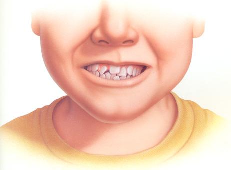 mất răng ở trẻ em