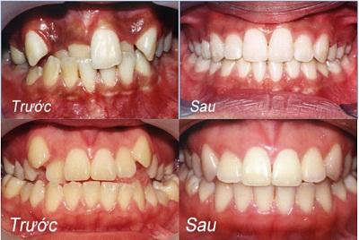 răng lệch