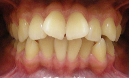 nguyên nhân răng lệch