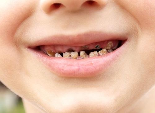 Nguyên nhân và cách chữa trị sâu răng ở trẻ em