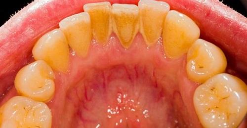 Cao răng là gì? Bệnh lý răng miệng do cao răng