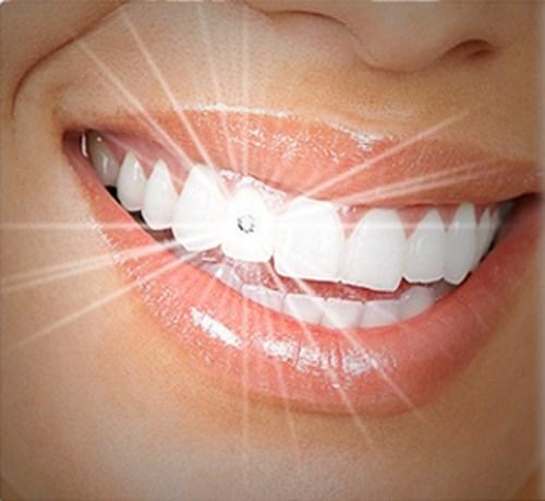 4 yếu tố giúp bạn xác định địa chỉ đính đá vào răng uy tín