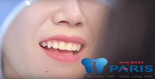 4 yếu tố giúp bạn xác định địa chỉ đính đá vào răng uy tín 1
