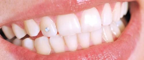Nụ cười đẹp tỏa sáng với công nghệ đính đá vào răng E.Las 1
