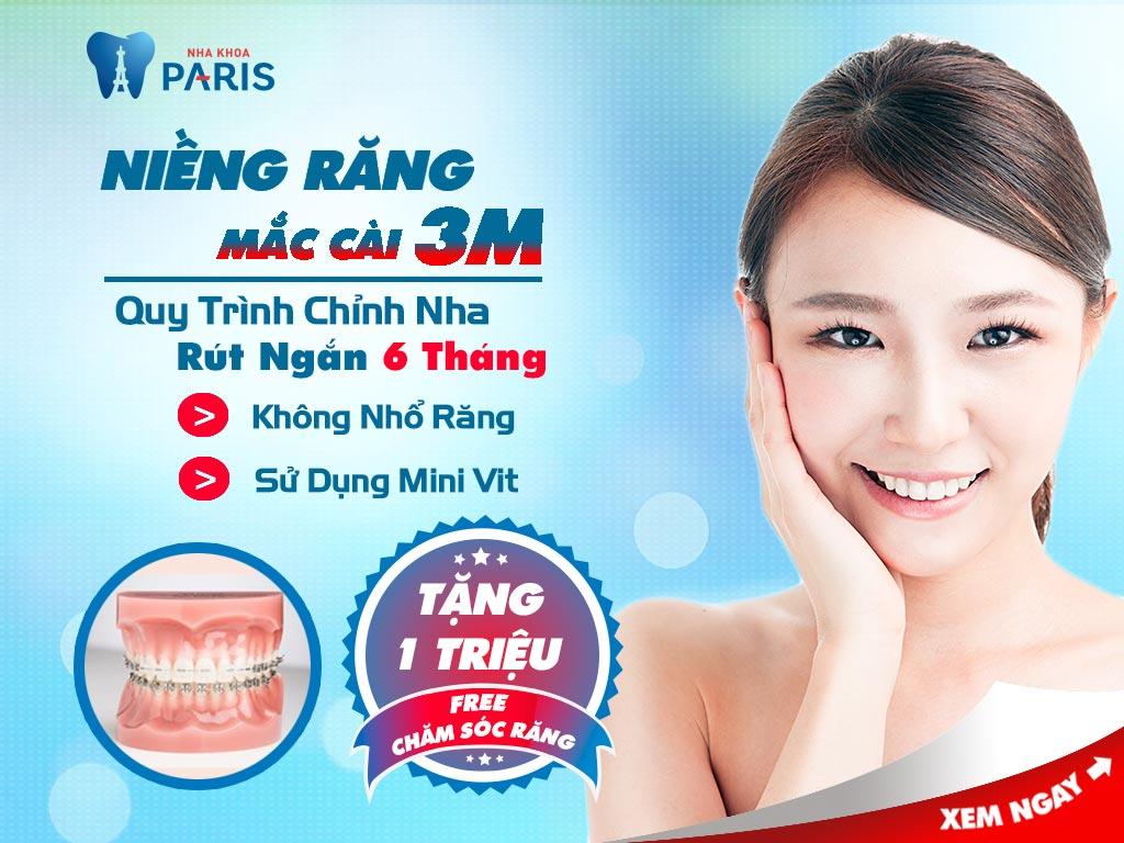 Niềng răng móm mất bao lâu là NHANH NHẤT?  2