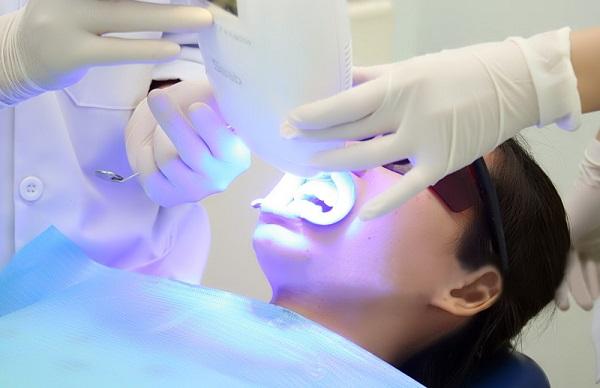 Công nghệ tẩy trắng răng có hiệu quả nhất hiện nay