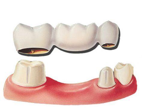 Làm răng sứ không kim loại có tốt không và vấn đề liên quan  2