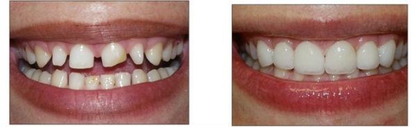 Bọc sứ răng thưa liệu có TỐT hay KHÔNG? Nha khoa Paris 1