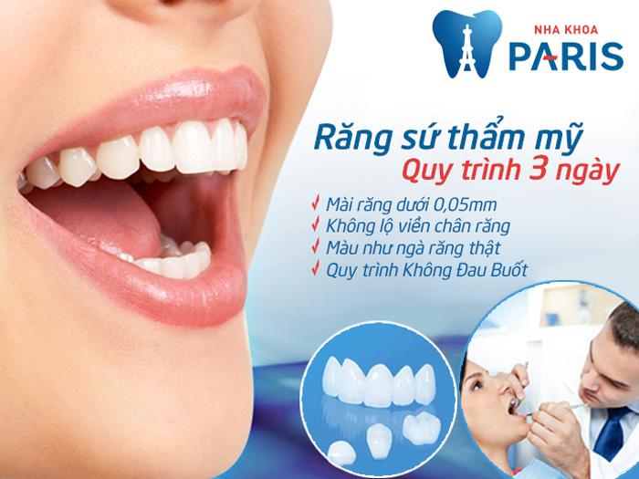 Cách bọc răng sứ tối thiểu chí phí, nhanh và hiệu quả nhất 2