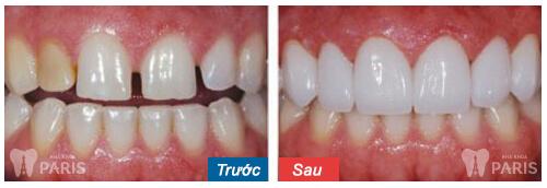 Răng cửa bị thưa phải làm sao để chữa trị - Bác sĩ giải đáp 3