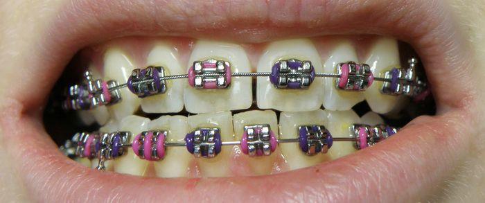 Răng cửa bị thưa phải làm sao để chữa trị - Bác sĩ giải đáp  2