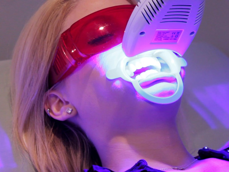 Những điều bạn nên biết về tẩy trắng răng bằng laser