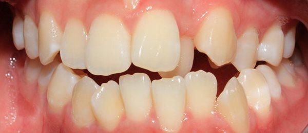Làm đều răng bằng cách bọc răng sứ có tốt không? - Giải đáp 1