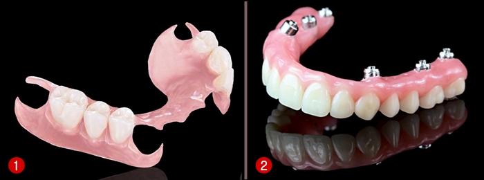 Những phương pháp trồng răng tiện lợi tốt nhất hiện nay 2