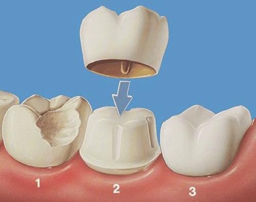 Khắc phục răng xấu hỏng hiệu quả bằng bọc răng sứ 2