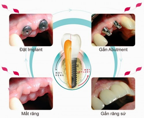 Những phương pháp trồng răng tiện lợi tốt nhất hiện nay
