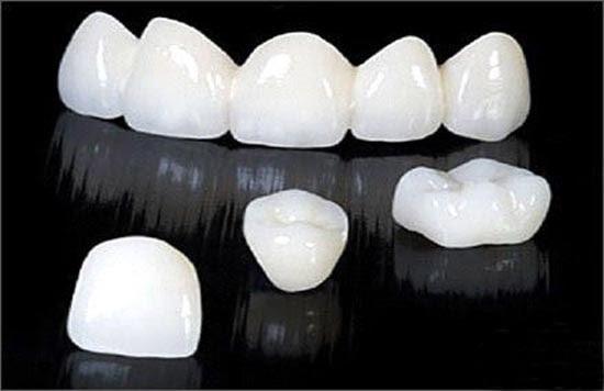 Bọc răng sứ cho răng cửa bằng cercon có tốt không? – Giải đáp